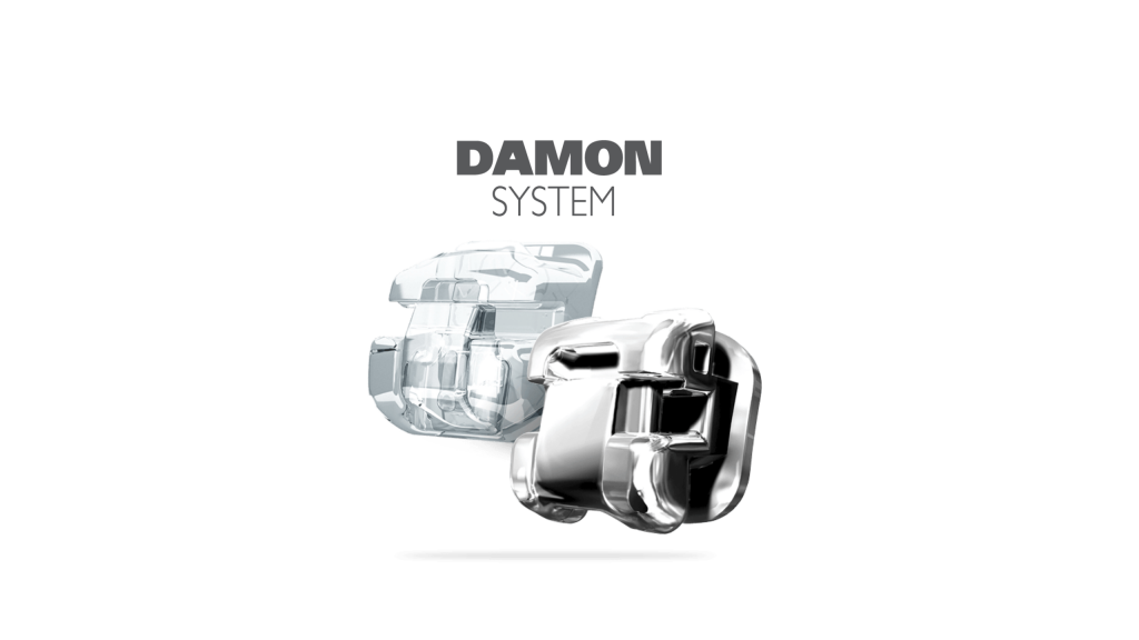 Damon System matériel en orthodontie digitale