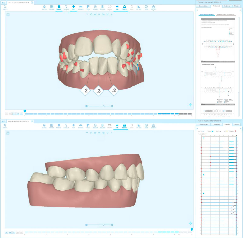 Analyse en orthodontie digitale